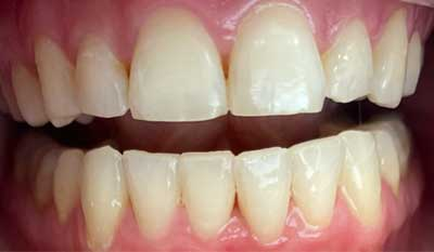 Invisalign correction - crowding - After