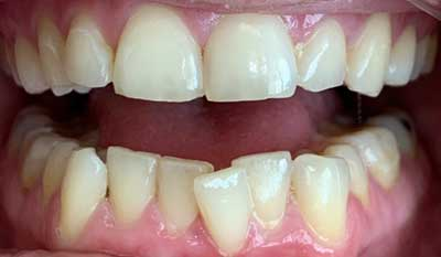 Invisalign correction - crowding - Before